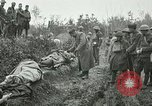 Image of Red Cross activists nurse US soldiers Fleville Chatel France, 1918, second 4 stock footage video 65675023653