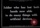 Image of Wounded German soldier without hands Germany, 1915, second 8 stock footage video 65675026879