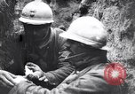 Image of Wounded French soldiers being treated France, 1918, second 10 stock footage video 65675028096