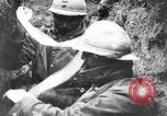 Image of Wounded French soldiers being treated France, 1918, second 12 stock footage video 65675028096
