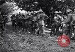 Image of US Army 39th Infantry wounded France, 1918, second 5 stock footage video 65675029960