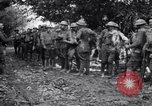 Image of US Army 39th Infantry wounded France, 1918, second 8 stock footage video 65675029960