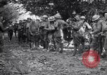 Image of US Army 39th Infantry wounded France, 1918, second 10 stock footage video 65675029960