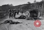 Image of Wounded US Army soldiers France, 1918, second 4 stock footage video 65675030274