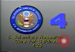 Image of cure for baldness in men United States USA, 1990, second 3 stock footage video 65675036379
