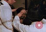 Image of eye wound from atomic bomb Hiroshima Japan, 1946, second 9 stock footage video 65675042180