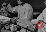 Image of operating a leg France, 1918, second 1 stock footage video 65675042404
