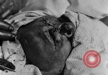 Image of wounded soldiers France, 1918, second 6 stock footage video 65675042407