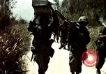 Image of Caring for American soldiers Vietnam, 1967, second 11 stock footage video 65675054824