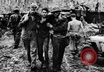 Image of Wounds and medical treatment of US Soldiers Pacific Theater, 1944, second 4 stock footage video 65675056748