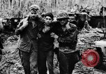 Image of Wounds and medical treatment of US Soldiers Pacific Theater, 1944, second 6 stock footage video 65675056748