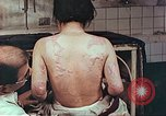 Image of burns on back of atomic bomb victim Hiroshima Japan, 1946, second 11 stock footage video 65675060687