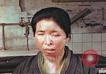 Image of facial wounds from atomic bomb Hiroshima Japan, 1946, second 2 stock footage video 65675060689