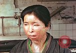 Image of facial wounds from atomic bomb Hiroshima Japan, 1946, second 5 stock footage video 65675060689