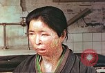Image of facial wounds from atomic bomb Hiroshima Japan, 1946, second 6 stock footage video 65675060689