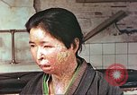 Image of facial wounds from atomic bomb Hiroshima Japan, 1946, second 7 stock footage video 65675060689