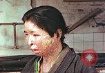 Image of facial wounds from atomic bomb Hiroshima Japan, 1946, second 8 stock footage video 65675060689