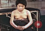 Image of medical care for atomic bomb victim Hiroshima Japan, 1946, second 11 stock footage video 65675060690