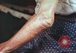 Image of elbow and hand wounds from atomic bomb Hiroshima Japan, 1946, second 8 stock footage video 65675060691