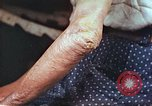 Image of elbow and hand wounds from atomic bomb Hiroshima Japan, 1946, second 9 stock footage video 65675060691