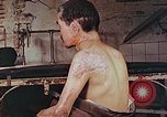 Image of neck and head wounds from atomic bomb Hiroshima Japan, 1946, second 2 stock footage video 65675060692