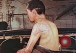 Image of neck and head wounds from atomic bomb Hiroshima Japan, 1946, second 5 stock footage video 65675060692