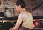 Image of neck and head wounds from atomic bomb Hiroshima Japan, 1946, second 6 stock footage video 65675060692