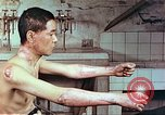 Image of wounds on bicyclist from atomic bomb blast Hiroshima Japan, 1946, second 4 stock footage video 65675060695