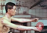 Image of wounds on bicyclist from atomic bomb blast Hiroshima Japan, 1946, second 6 stock footage video 65675060695