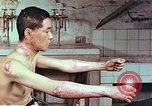 Image of wounds on bicyclist from atomic bomb blast Hiroshima Japan, 1946, second 8 stock footage video 65675060695