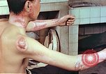 Image of wounds on bicyclist from atomic bomb blast Hiroshima Japan, 1946, second 12 stock footage video 65675060695