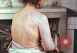 Image of effects of position on atomic bomb victim Hiroshima Japan, 1946, second 2 stock footage video 65675060697