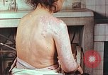 Image of effects of position on atomic bomb victim Hiroshima Japan, 1946, second 5 stock footage video 65675060697
