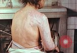 Image of effects of position on atomic bomb victim Hiroshima Japan, 1946, second 6 stock footage video 65675060697