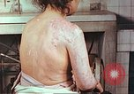 Image of effects of position on atomic bomb victim Hiroshima Japan, 1946, second 8 stock footage video 65675060697
