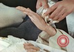 Image of Japanese patient Nagasaki Japan, 1946, second 11 stock footage video 65675060753
