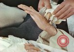 Image of Japanese patient Nagasaki Japan, 1946, second 12 stock footage video 65675060753
