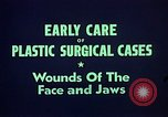 Image of wounded soldier European Theater, 1945, second 12 stock footage video 65675077543