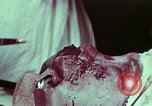 Image of wounded soldier European Theater, 1945, second 2 stock footage video 65675077545