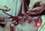 Image of wounded soldier European Theater, 1945, second 3 stock footage video 65675077545