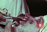 Image of wounded soldier European Theater, 1945, second 4 stock footage video 65675077545