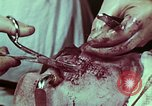 Image of wounded soldier European Theater, 1945, second 7 stock footage video 65675077545