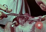 Image of wounded soldier European Theater, 1945, second 8 stock footage video 65675077545
