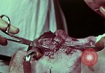 Image of wounded soldier European Theater, 1945, second 9 stock footage video 65675077545