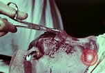 Image of wounded soldier European Theater, 1945, second 10 stock footage video 65675077545